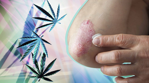 Is CBD A Natural Solution To Treat Irritating and Painful Eczema Symptoms?